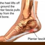 How I Got Rid of My Plantar Fascitis Forever